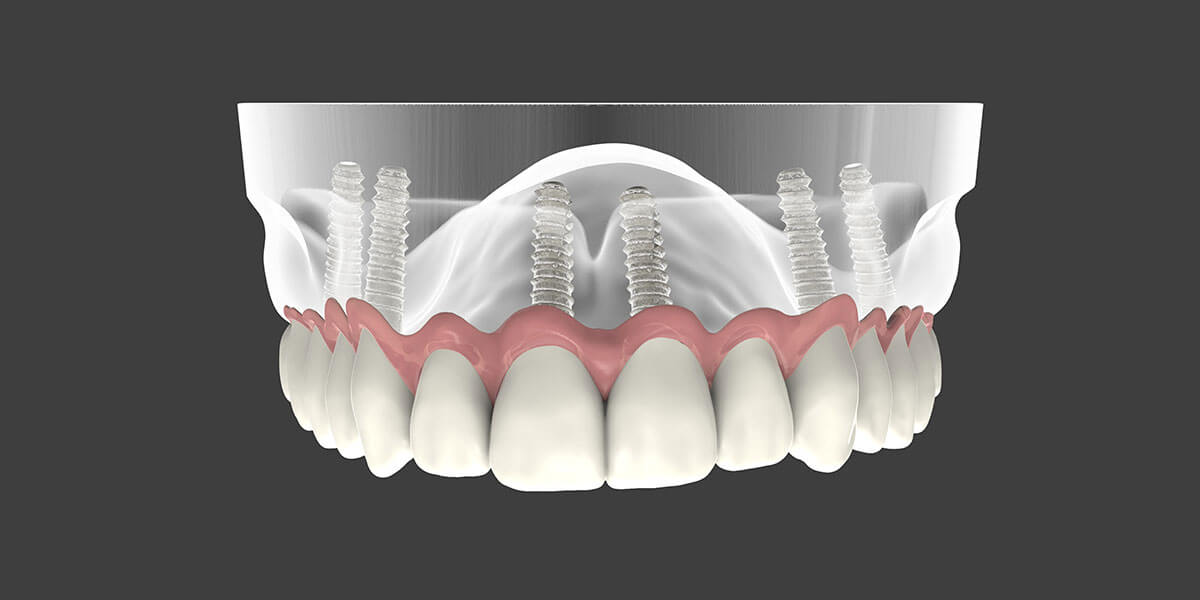 Implant Supported Dentures Graphic
